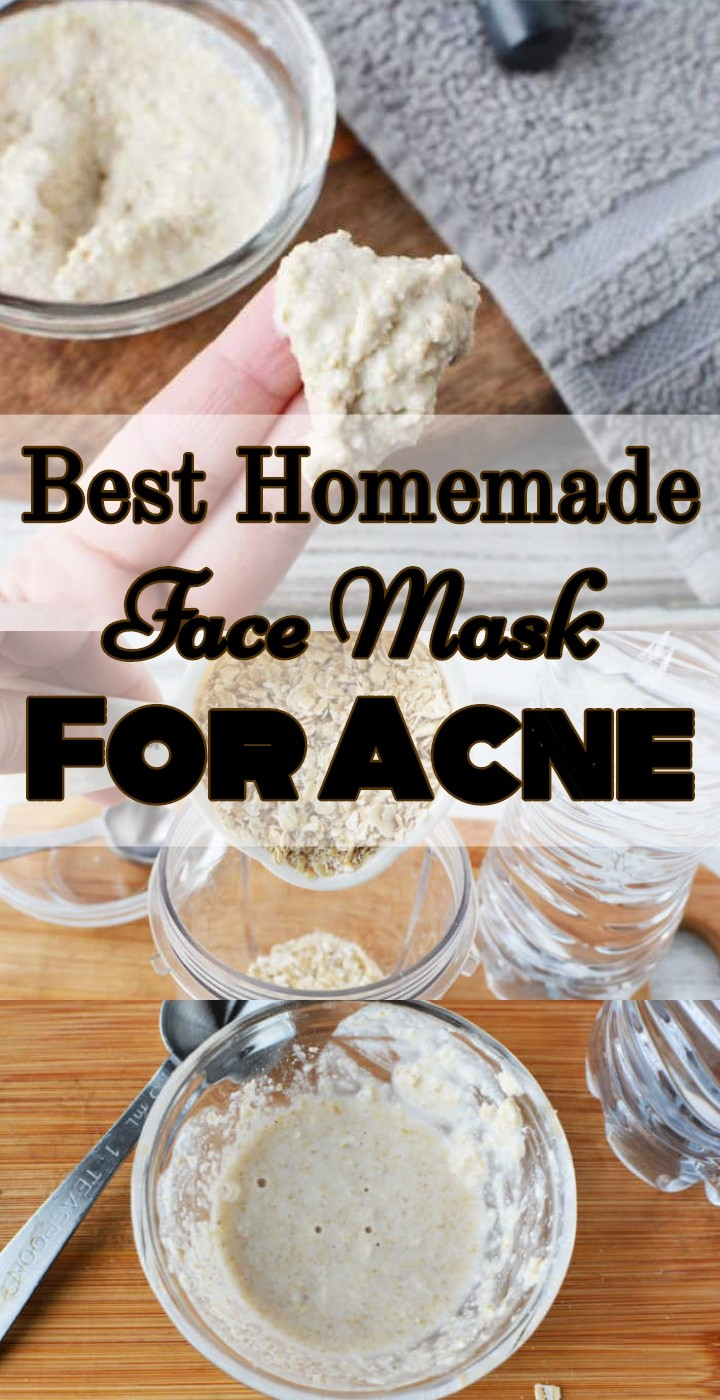 Best Homemade Face Mask For Acne