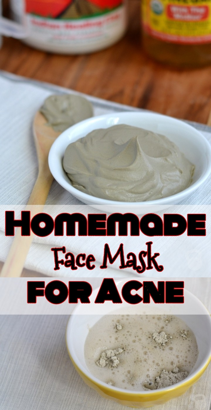 DIY Homemade Face Mask for Acne