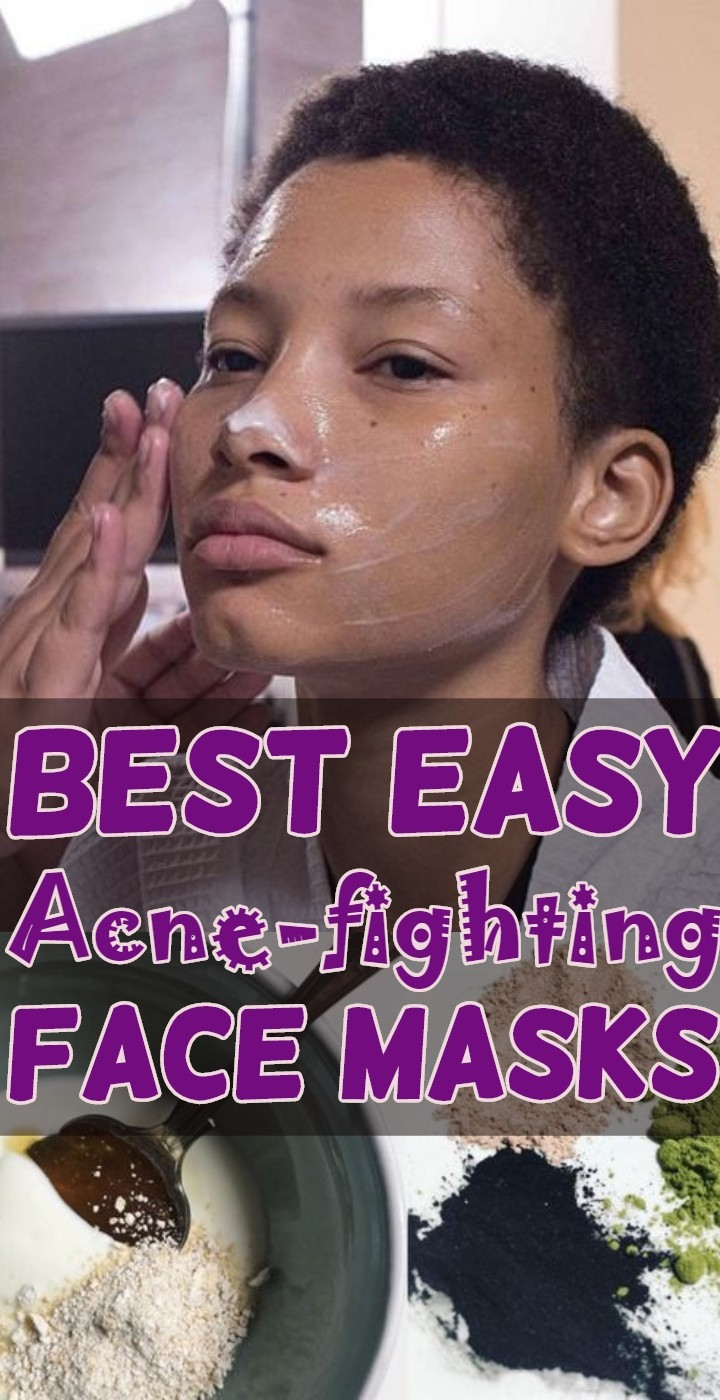Best Easy Acne fighting Face Masks
