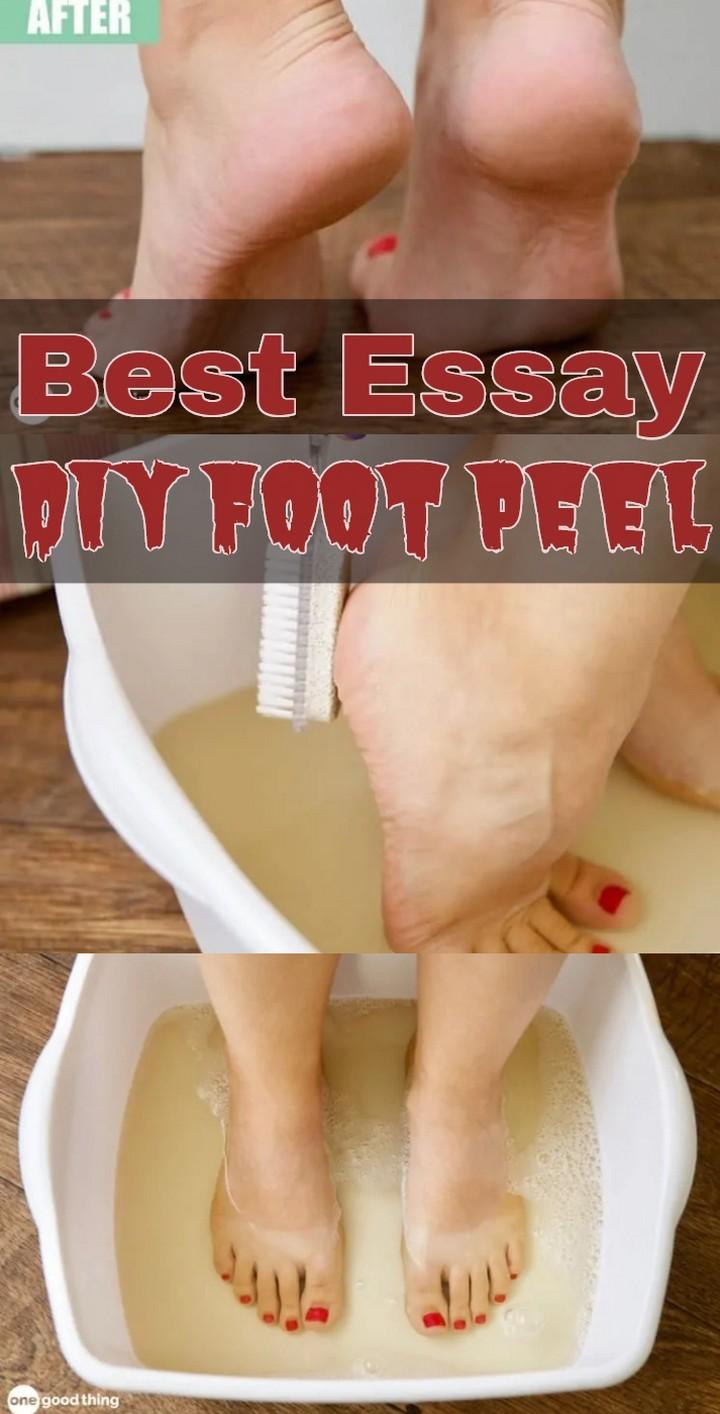 Best Essay DIY Foot Peel