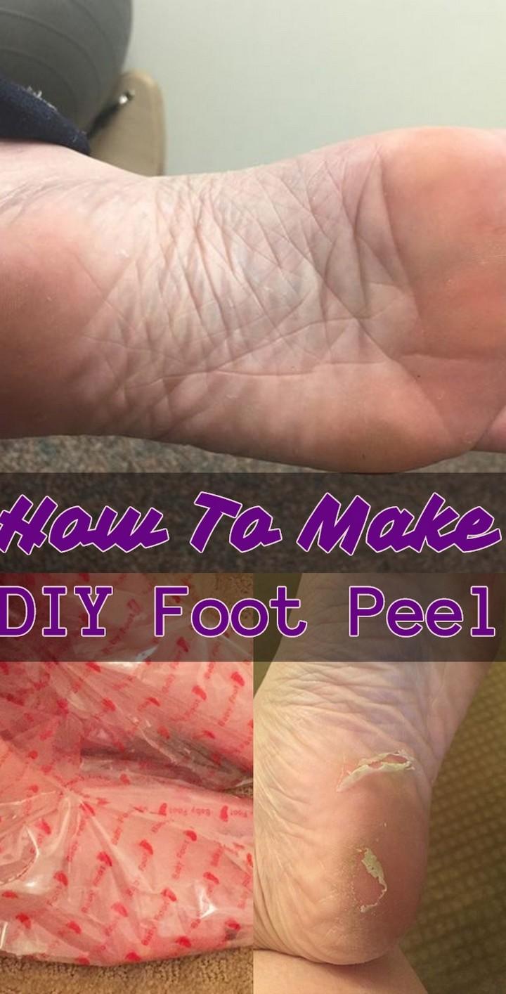 How To Make DIY Foot Peel