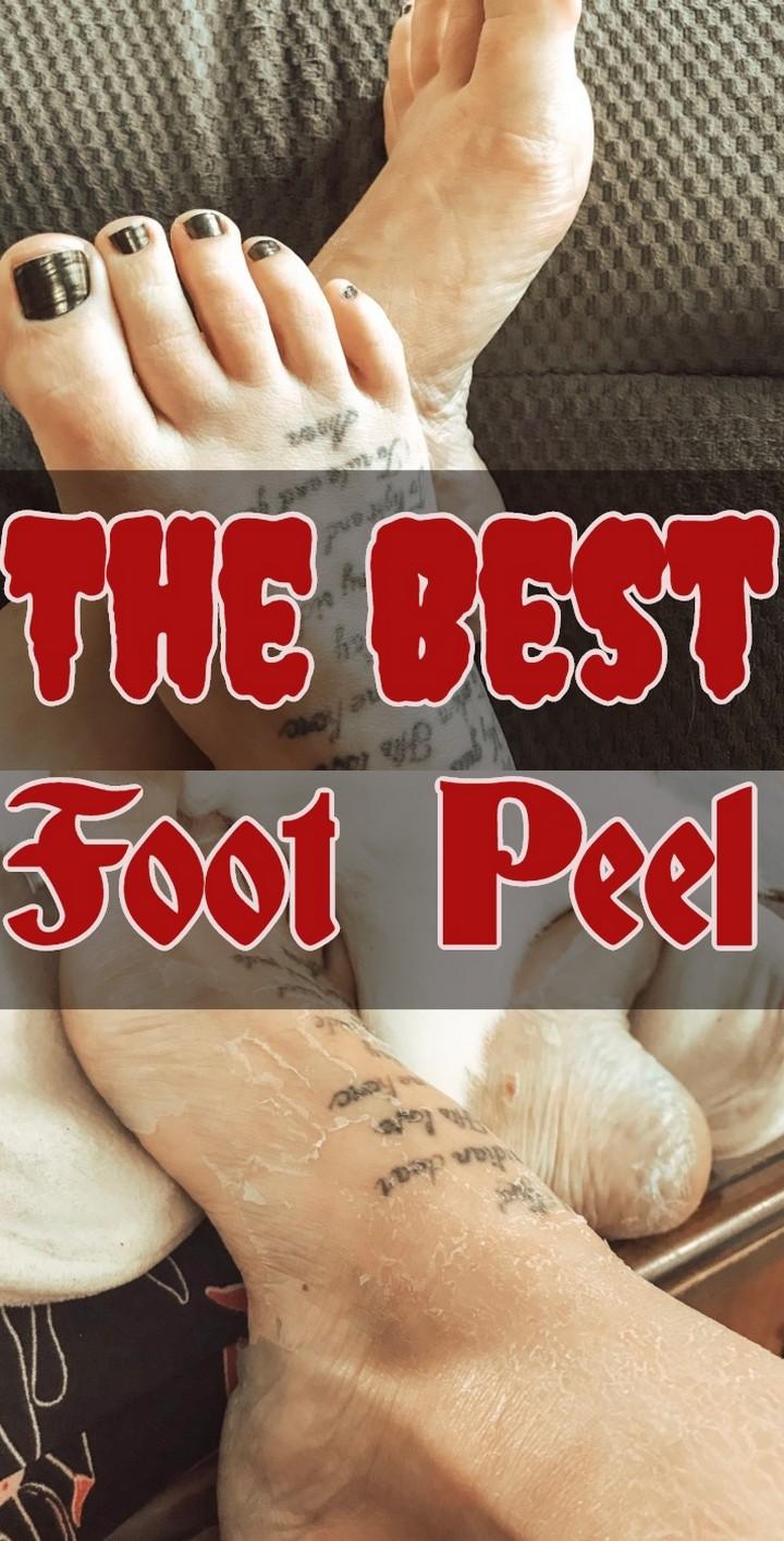 The Best Foot Peel