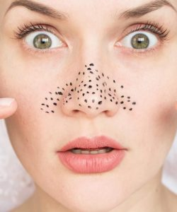 5 Best DIY Blackhead Removal Mask Ideas That Easy To Make